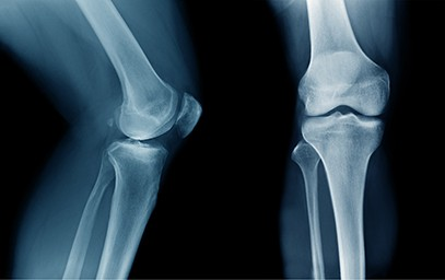 Non-Surgical Treatments for Chronic Knee Injuries and Conditions Bellingham, WA